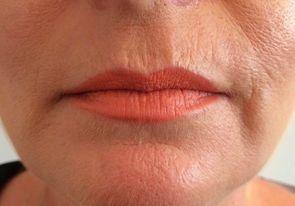 Lip enhancement Wakefield - Juverdem Volbella and Belotero