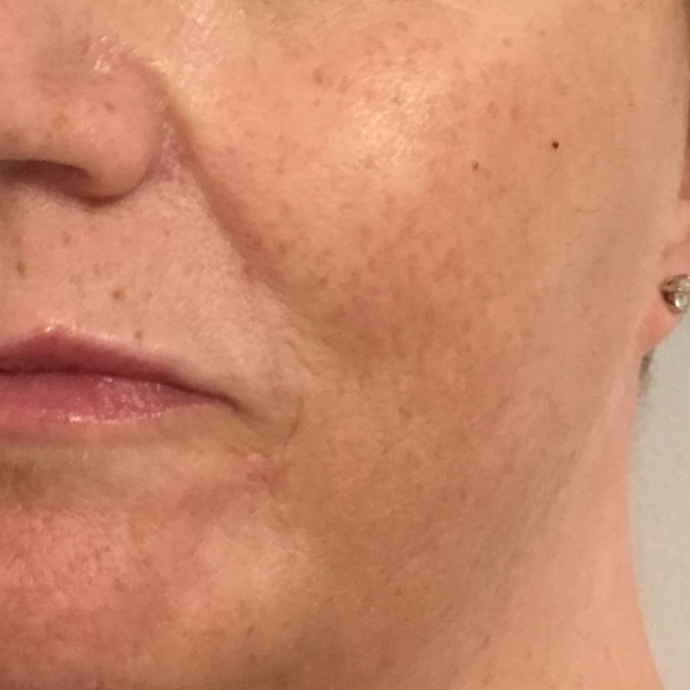 After-8 Point Lift - Before and after treatment