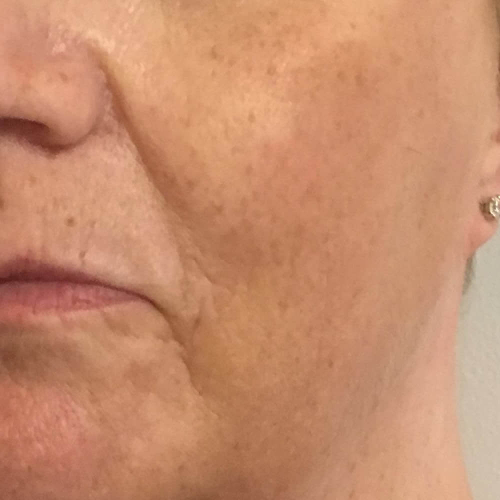 Before-8 Point Lift - Before and after treatment