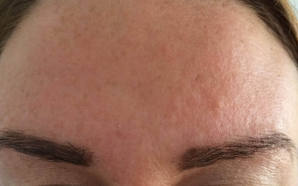 After-Wrinkle smoothing injections - before and after