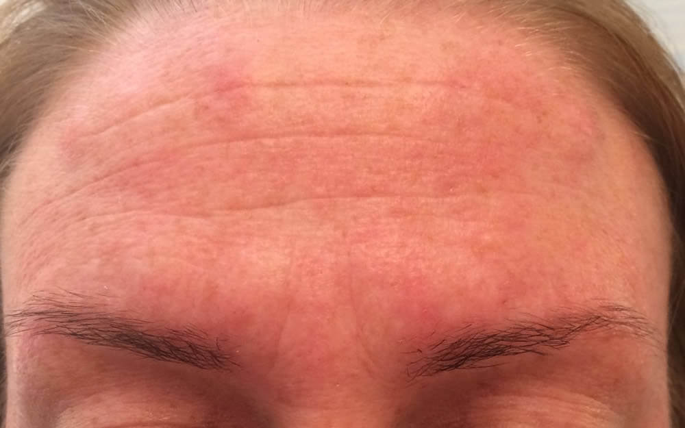 Before-Wrinkle smoothing injections - before and after