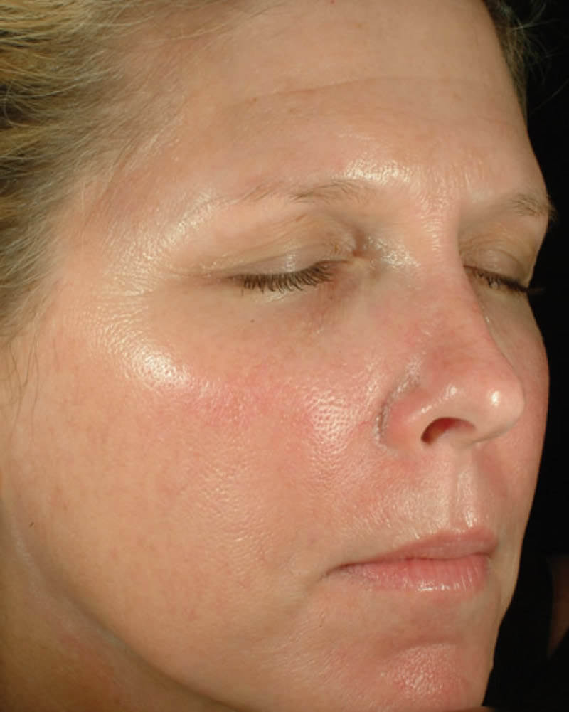 After-Chemical skin peel - before and after