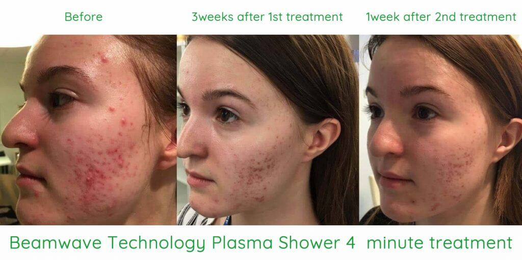 Plasma shower 4 minute treatment of acne