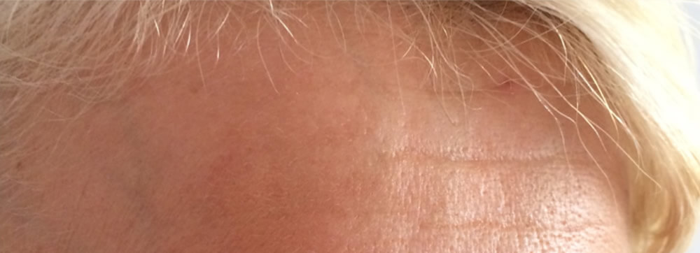 After-Skin Microneedling - Before and after treatment