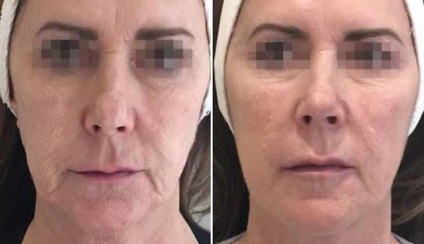 Profilo - face before and after - Mid Yorkshire Skin Clinic