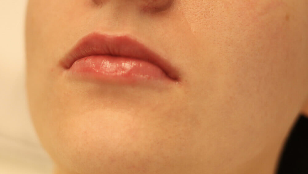 After-Lip Enhancement - before and after treatment
