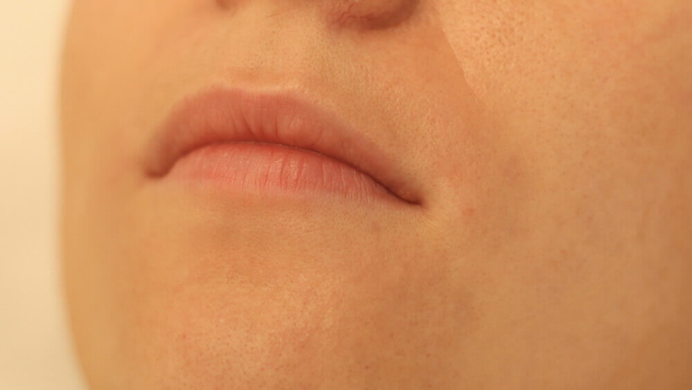 Before-Lip Enhancement - before and after treatment